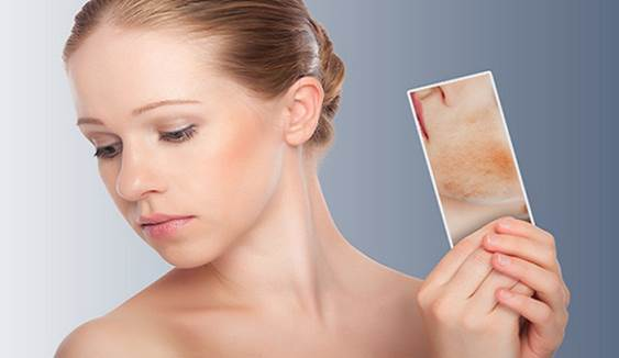 Tips On Treating Scars With Honey